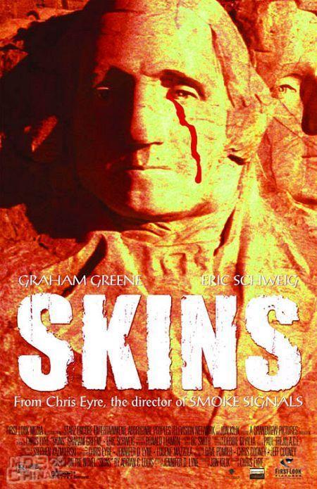 Skins77467